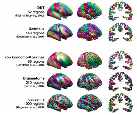 Predicting age from cortical structure across the lifespan