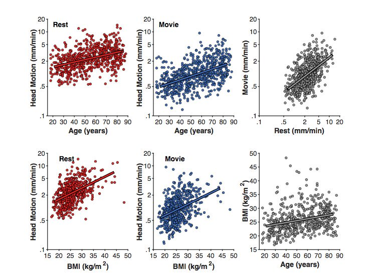 Age differences in head motion and estimates of cortical morphology