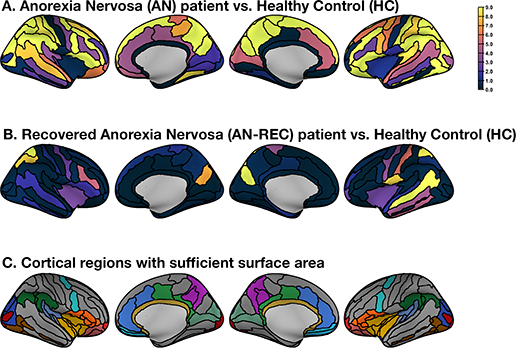 Cortical Complexity in Anorexia Nervosa: A Fractal Dimension Analysis